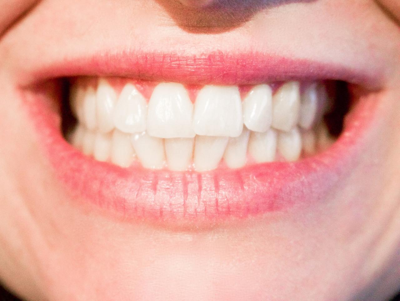 teeth-1652976_1920-1